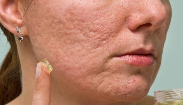 Woman with Acne Scars applying Gel