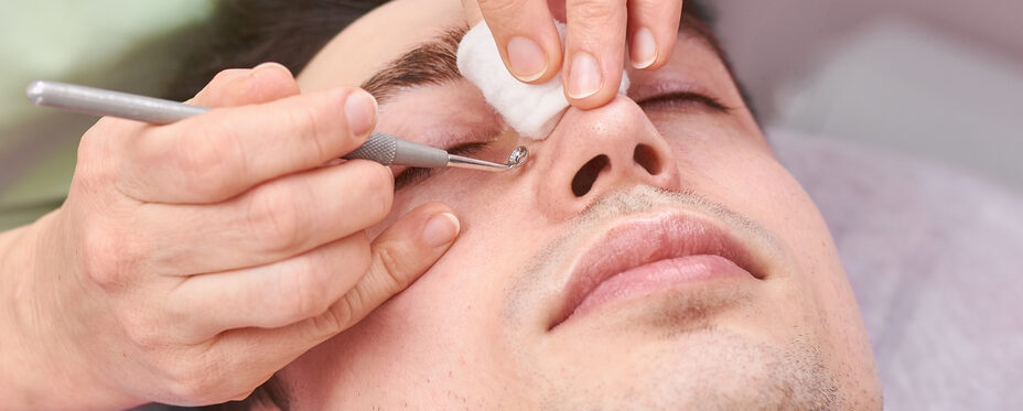 Young Man getting Blackheads removed